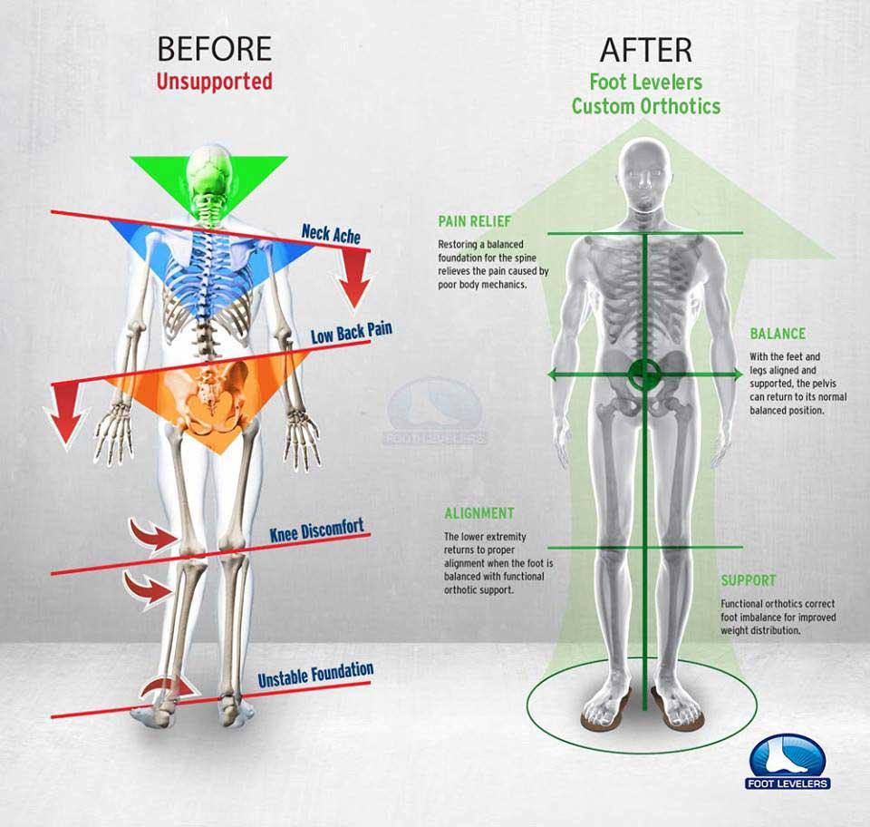 Chiropractic Watertown WI Foot Levelrs - Crooked Man vs Balanced Man